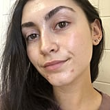 "Now, let me preface this by saying I've tried a lot of acne treatments during my time as a beauty editor and beyond that. While some have mildly helped the issue, I'm usually left with a sense of discouragement because they take so long to ""work"" that I feel as if they really didn't do much at all. Before trying the Perricone MD Acne Relief Maximum Strength Spot Gel, I was under the impression that treating a pimple with anything less than a cortisone shot was a myth and that breakouts would simple pass when it was time and not a second before."