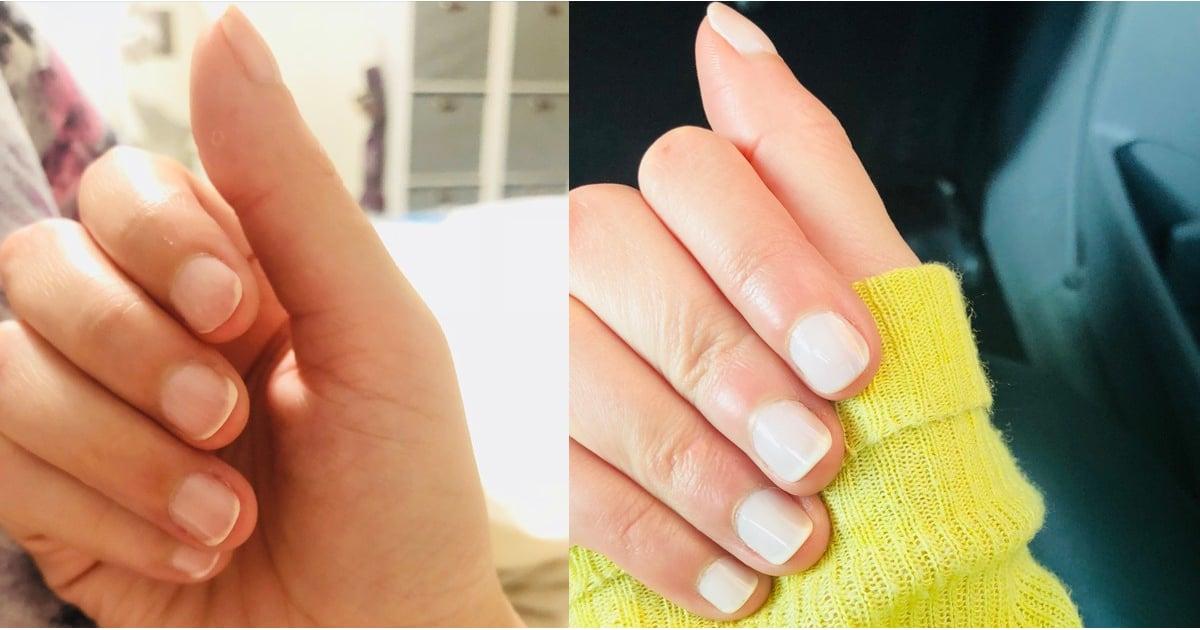 Hypnotism For Nail-Biting Habit Experiment | POPSUGAR Beauty