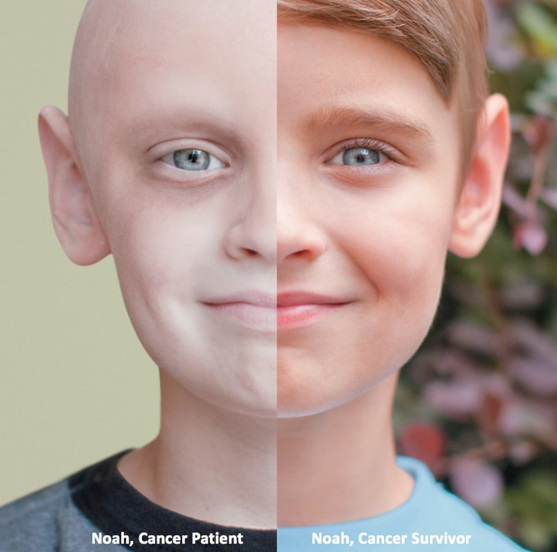 Image result for photo of pediatric cancer survivor