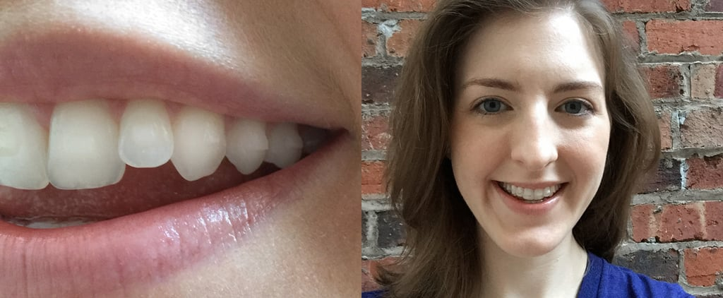 11 Things I Wish I'd Known Before I Got Invisalign