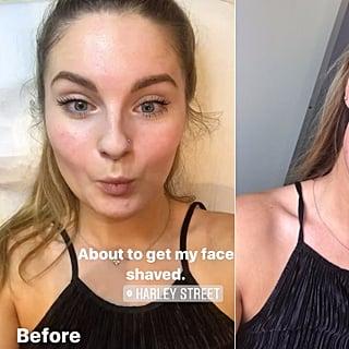 هل يمكن لحلاقة الوجه درمابلانينغ أن تسبب غزارة شعر الوجه?