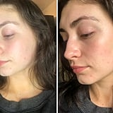 Before and After Using SLMD Dark Spot Fix For Two Days