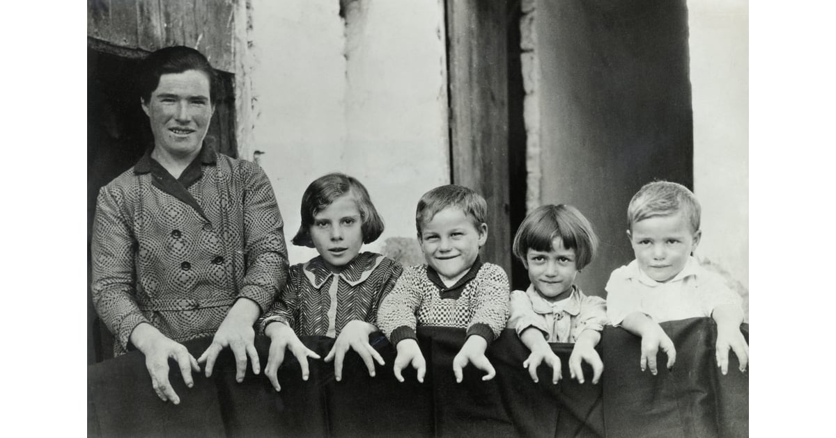 Cleft Hands | Real People From American Horror Story Freak Show | POPSUGAR Entertainment Photo 5