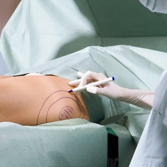 What Is a Brazilian Butt Lift? A Plastic Surgeon Explains