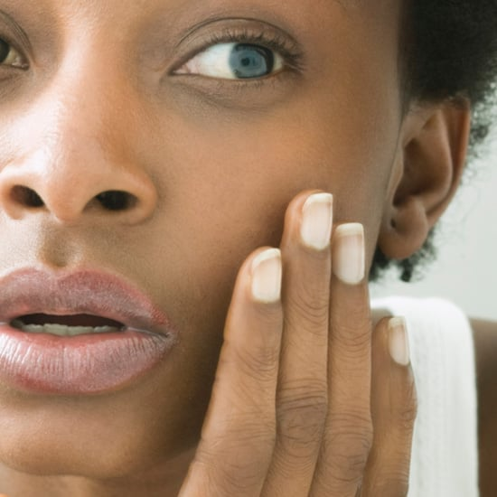 4 Easy Steps to Covering Up a Gargantuan Pimple