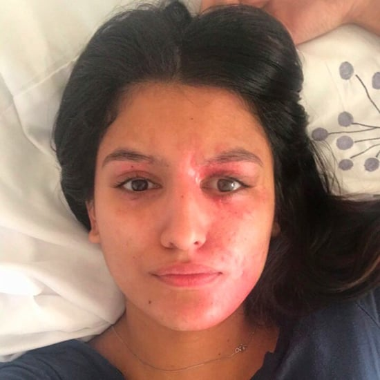 Resham Khan, Acid Burn Victim, Takes Makeup-Free Selfie