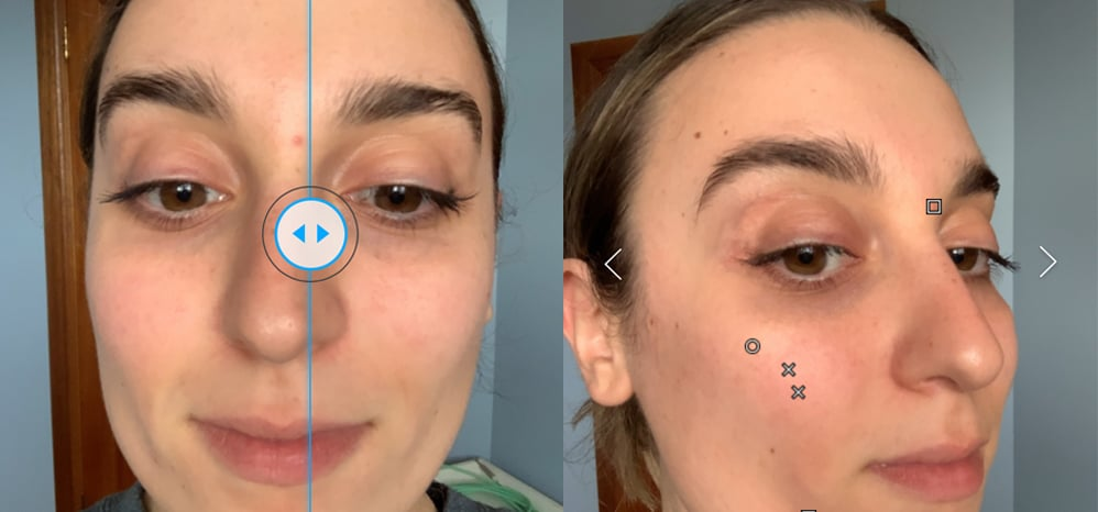 How To Use La Roche-Posay's Spotscan Blackhead App