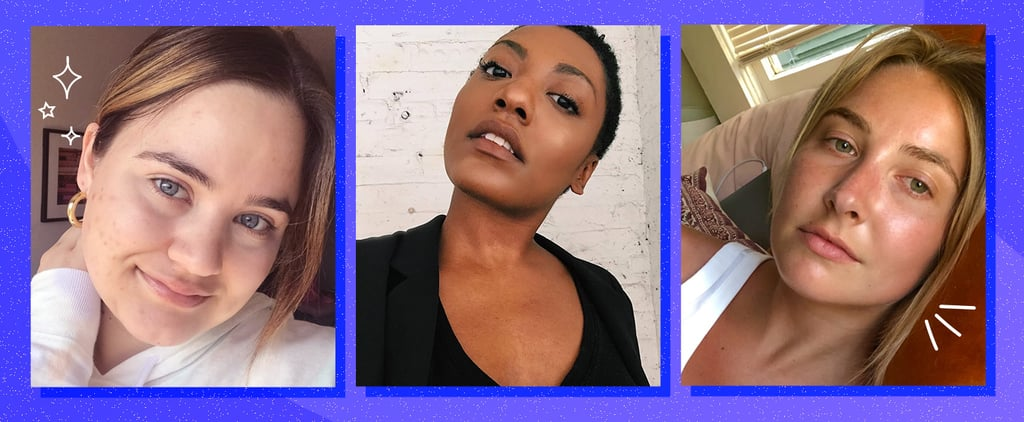 Editor Acne Confessions, Personal Experiences With Breakouts