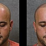Hair Tattoos For Baldness
