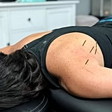 Did Dry Needling Help My Injury?