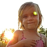 What are the potential health effects of sun overexposure?