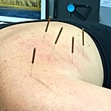 What Does It Feel Like After You Get Dry Needling?