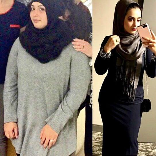 31-Kilo Weight Loss Before-and-After | Ariana Hamidi