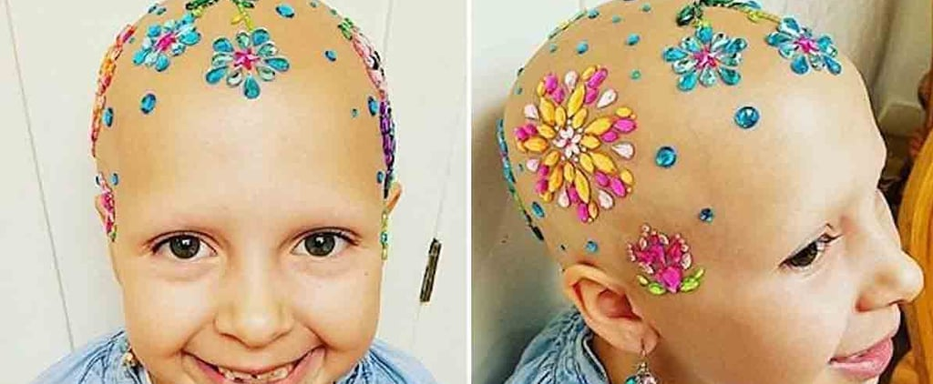 """This Girl With Alopecia Won """"Crazy Hair Day"""" at Her School"""