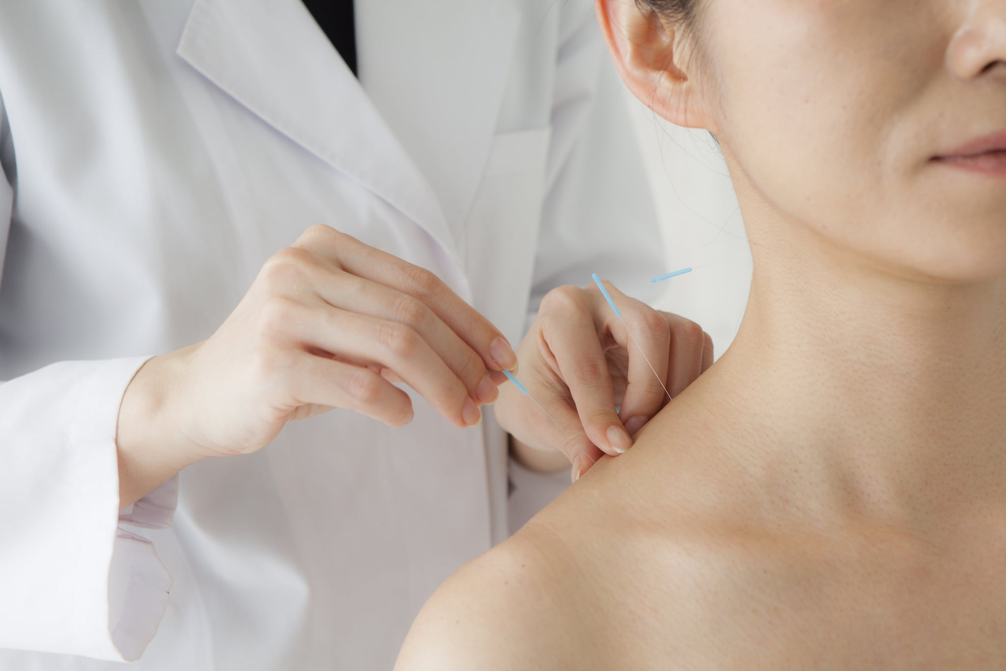 5 Acupuncture Side Effects to Know About Before Your Treatment