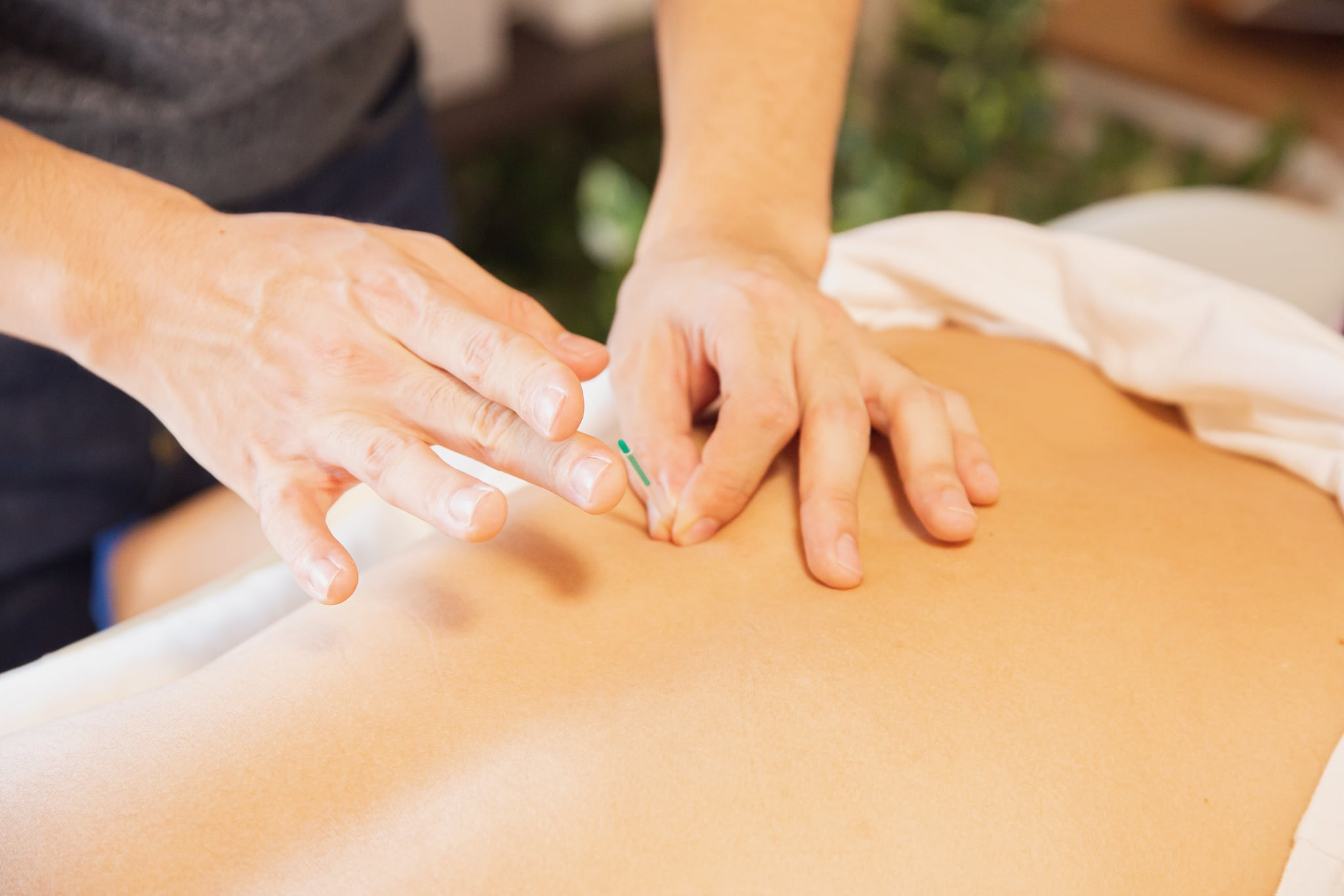 Can Acupuncture Increase Sex Drive? 2