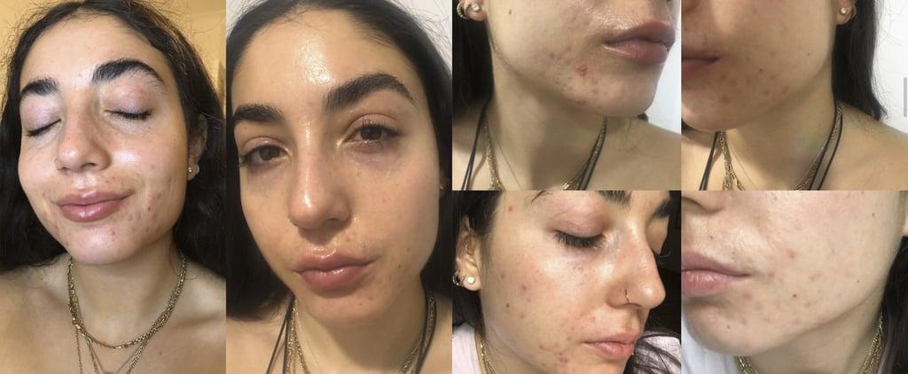 How to Keep Skin Hydrated on Isotretinoin (Roaccutane)