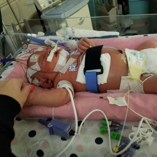 Newborn Baby Dies From Meningitis HSV-1