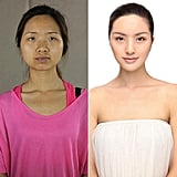 When Plastic Surgery Made These Women Unrecognizable