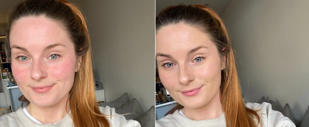 Rosalique Anti-Redness Formula Before and After Photos