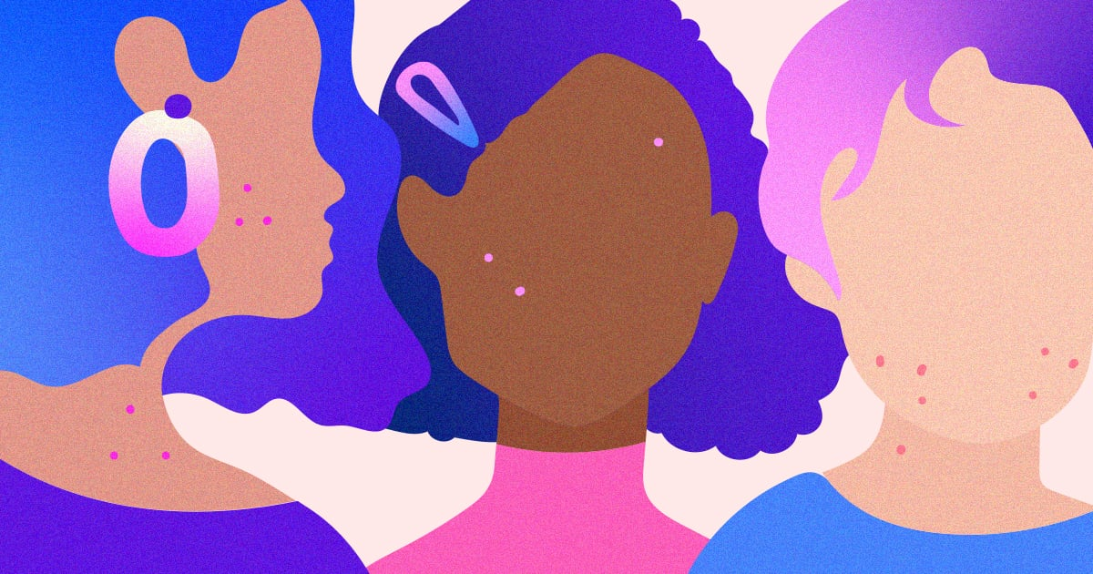 Zit Happens: Acne Advice, Tips, and Treatments