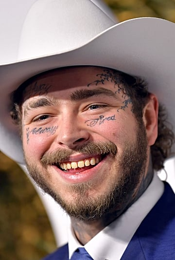"""Post Malone's Smile and """"Diamond Fangs"""" Cost $1.6 Million"""