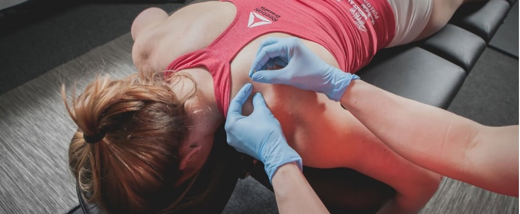 What Is Dry Needling? Is It Safe?