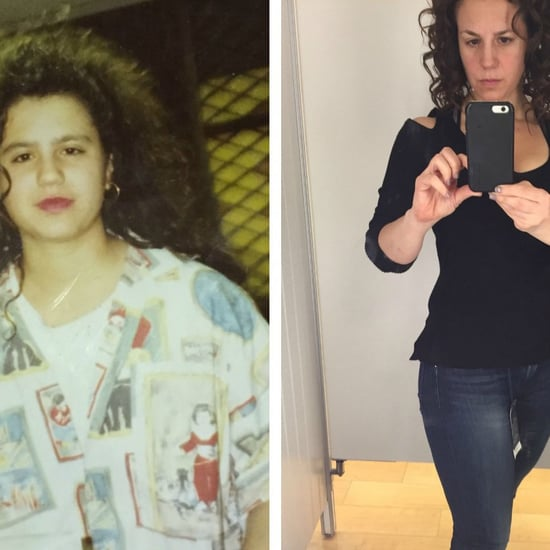 45-Kilos Weight Loss Before and After
