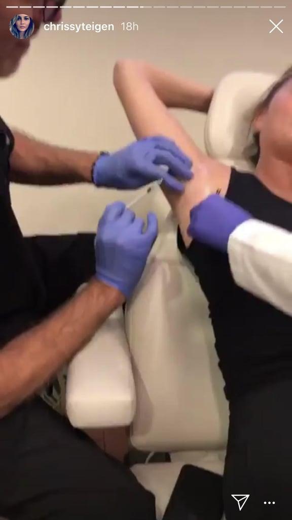 Chrissy Teigen Got Botox in Her Armpits
