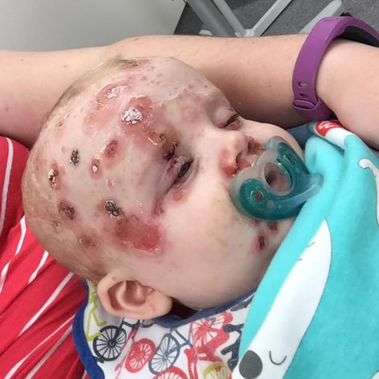 Mum's Plea to Anti-Vaxxers After Baby Gets Chicken Pox