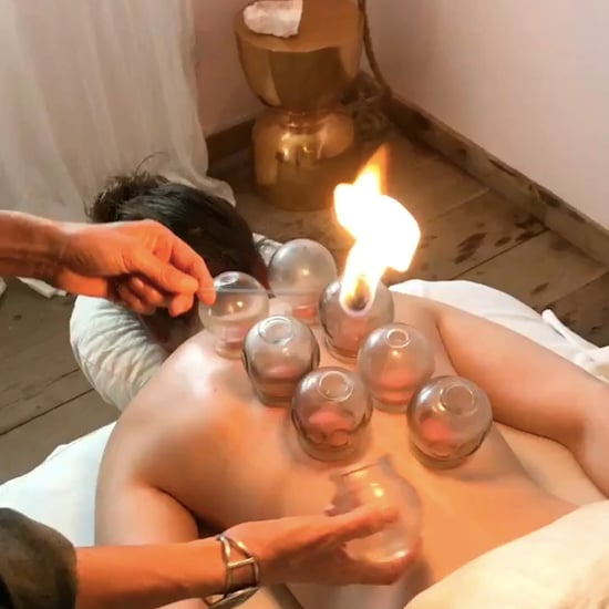 What Is Fire Cupping?
