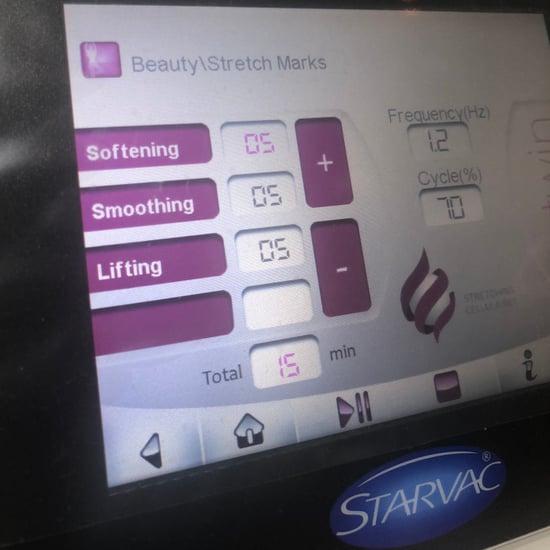 تقييم علاج Starvac لتخفيف علامات تمدّد الجلد