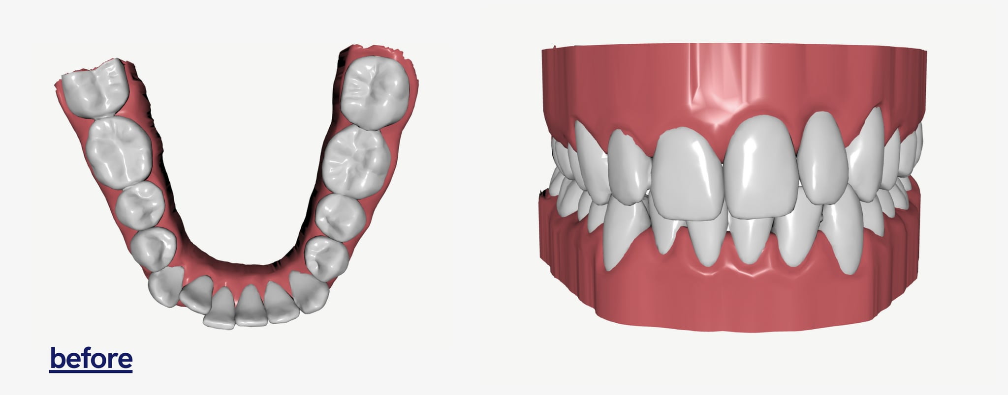 Byte Invisible Aligners Cost and Review 7