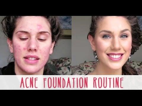 Cassandra Bankson's Acne Foundation Routine