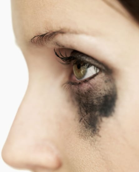 Tips For Avoiding Injuring Your Eyes With Eyeliner
