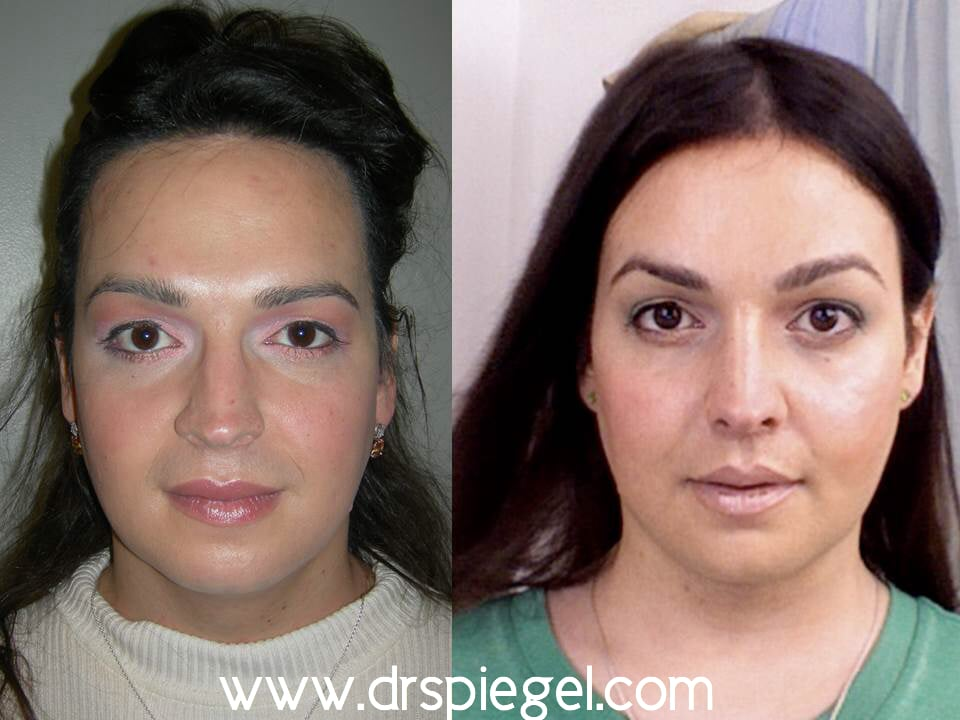 Transsexual befoer and after photos