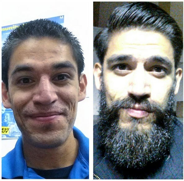 Bulky Beard Before And After Beard Transformations