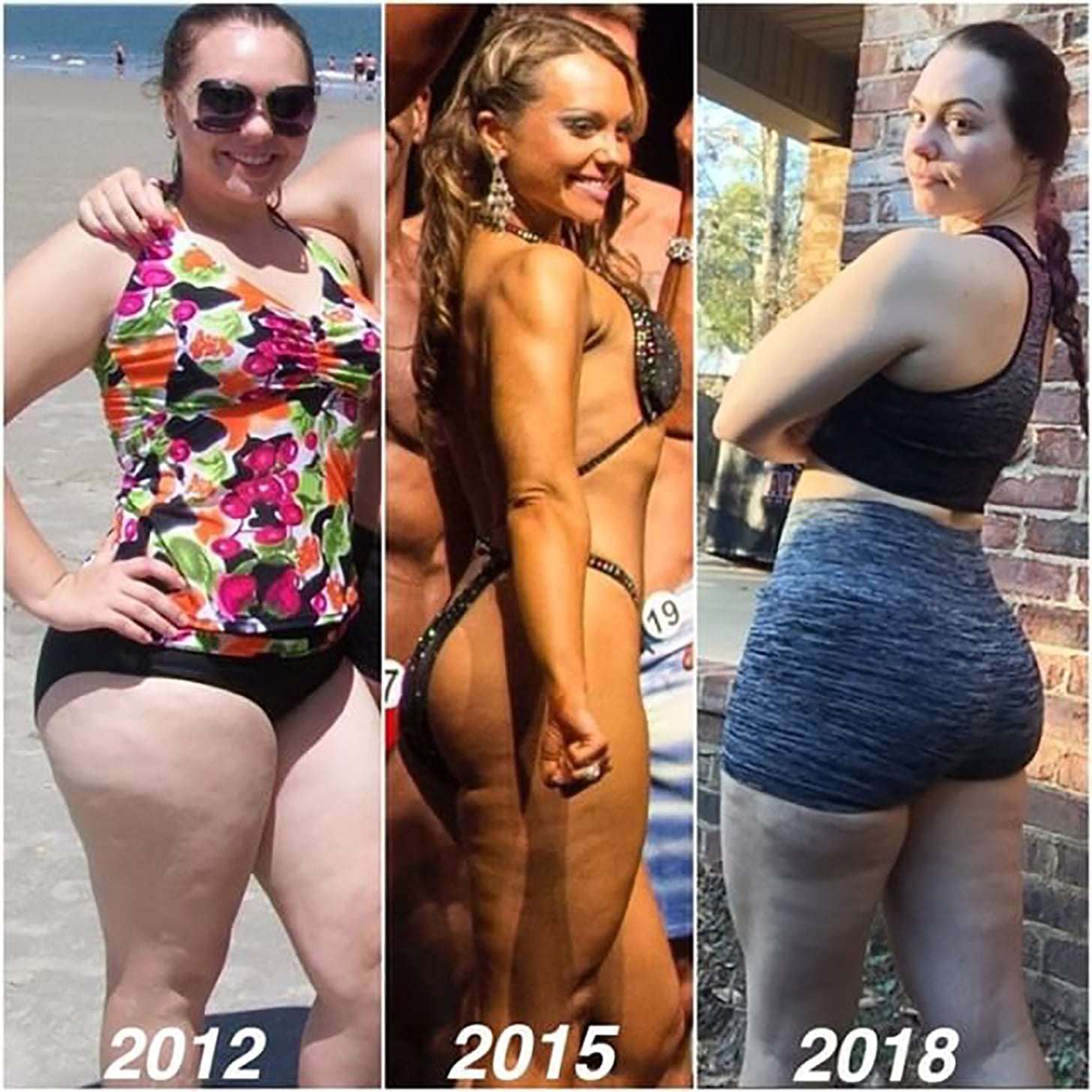 Cellulite on thighs after weight loss