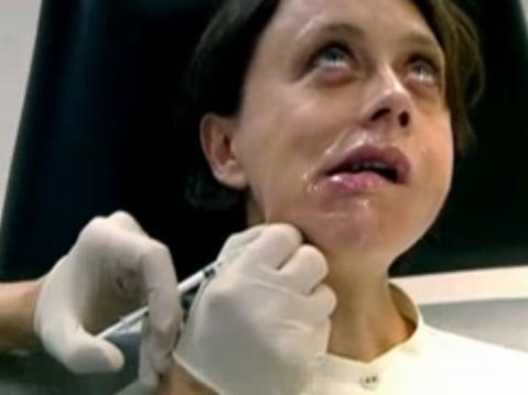 Super Botox Me