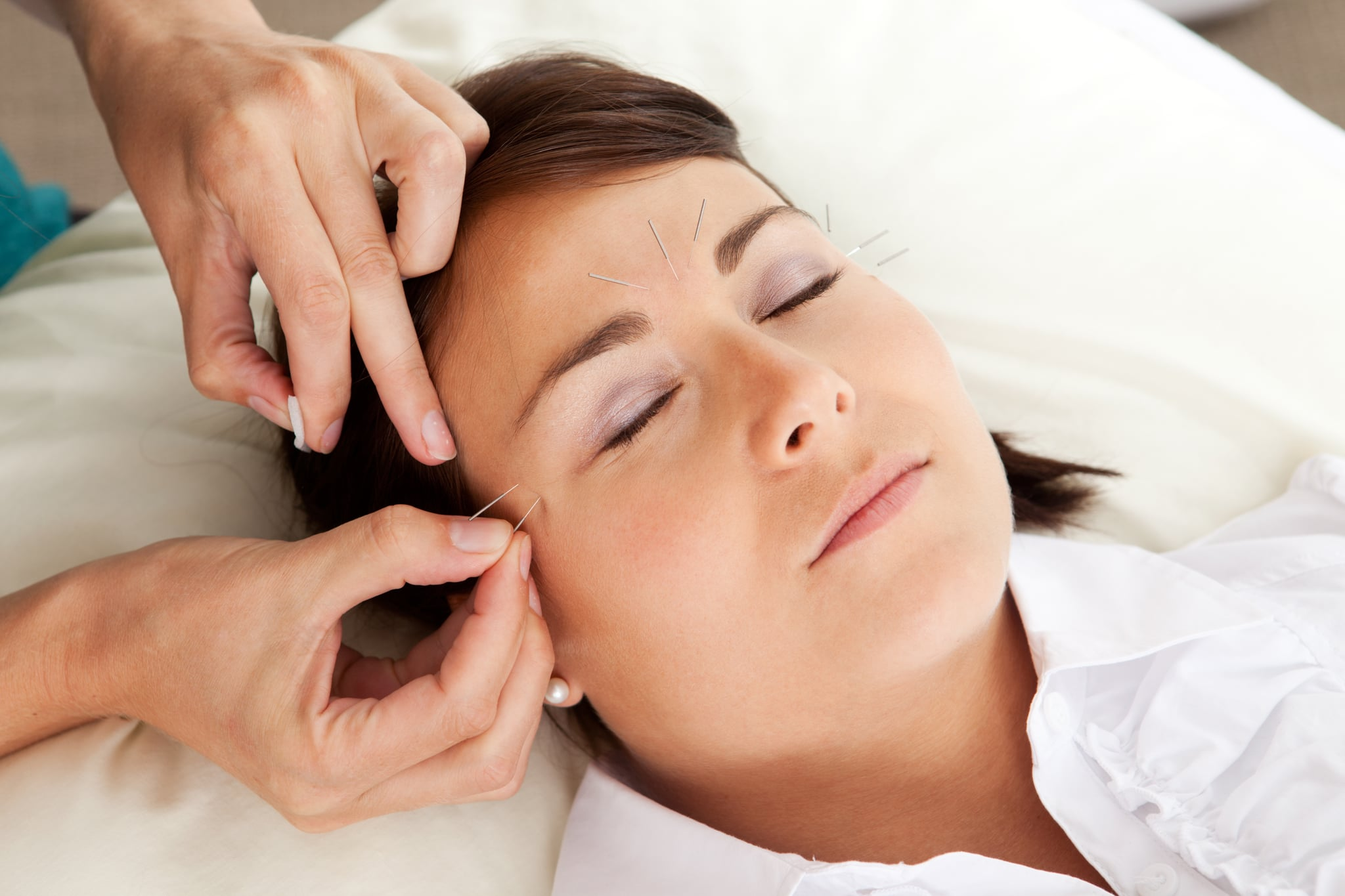 What Everyone That's Getting Acupuncture Needs To Know First
