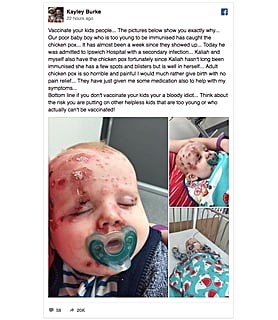 Every Parent Needs to See This Photo of What Happens When You Don't Vaccinate Your Kids
