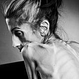 When a Woman Beat Anorexia with the Support of Thousands
