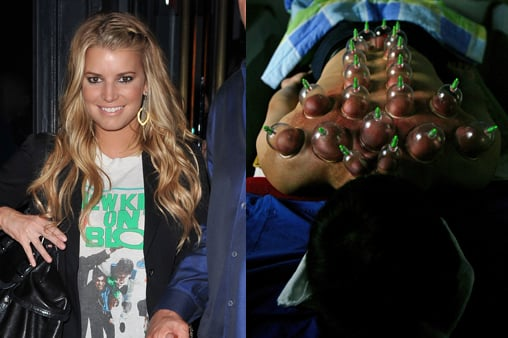 Jessica Simpson Tries Cupping and Goes on a Vegan Diet