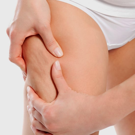 What Cellulite Treatments Work