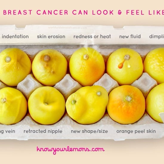 What does breast cancer look like-4679