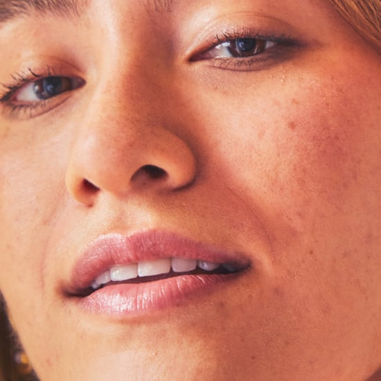 How to Get Rid of Hyperpigmentation, According to the Pros