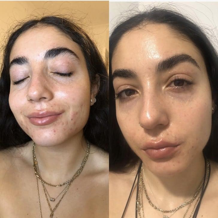 How To Keep Acne Skin Hydrated On Accutane Popsugar Beauty