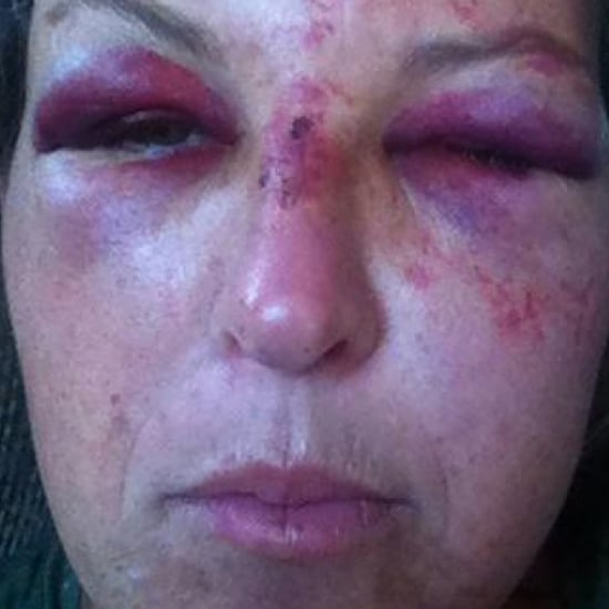 Montana Day Care Worker Assaulted by Drunk Father