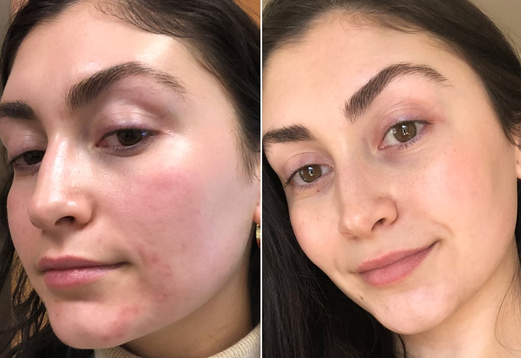 My Skin Right After Treatment vs. One Month Later