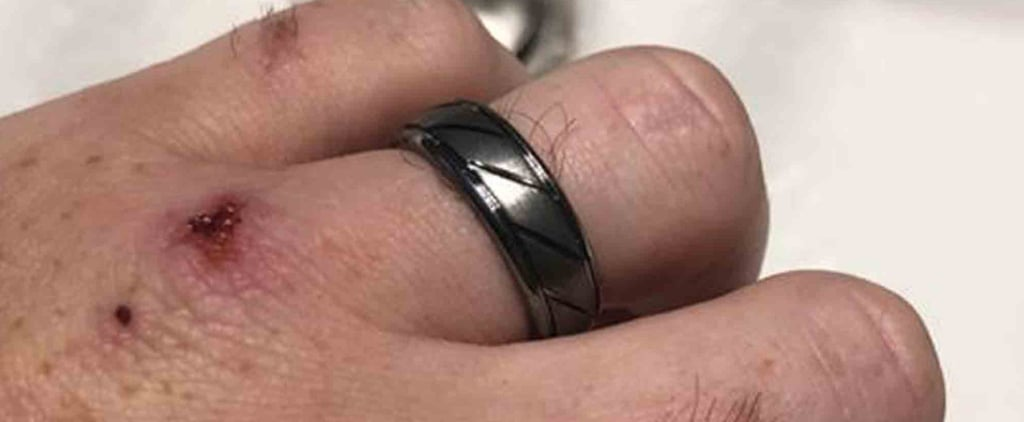 Why This Husband Cleans His Wedding Ring Every Week